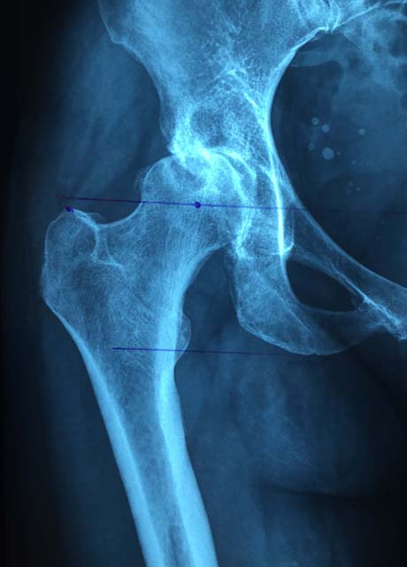 X-ray: Severe arthritis of the right hip due to developmental dysplasia of the acetabulum