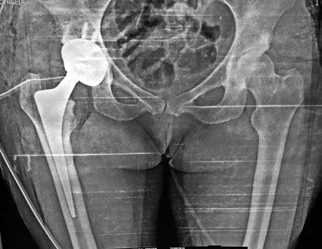 Post op X-ray,  ALMIS right hip arthroplasty