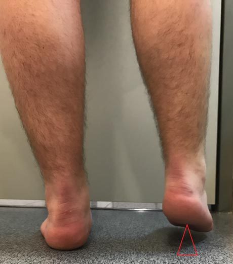 Limb length discrepancy. The right lower limb is shorter than normal